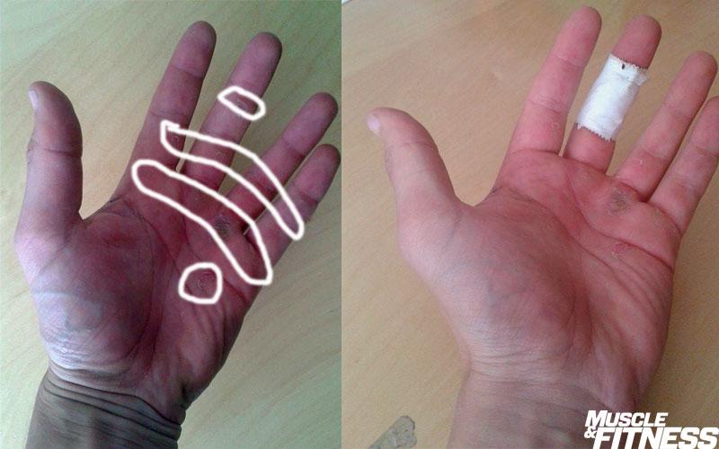 Blog hands calluses